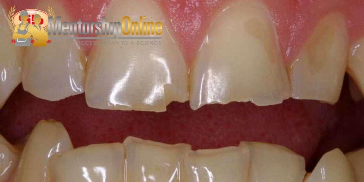 Activator How Take Care Of Teeth Enamel Full Zip Ultimate