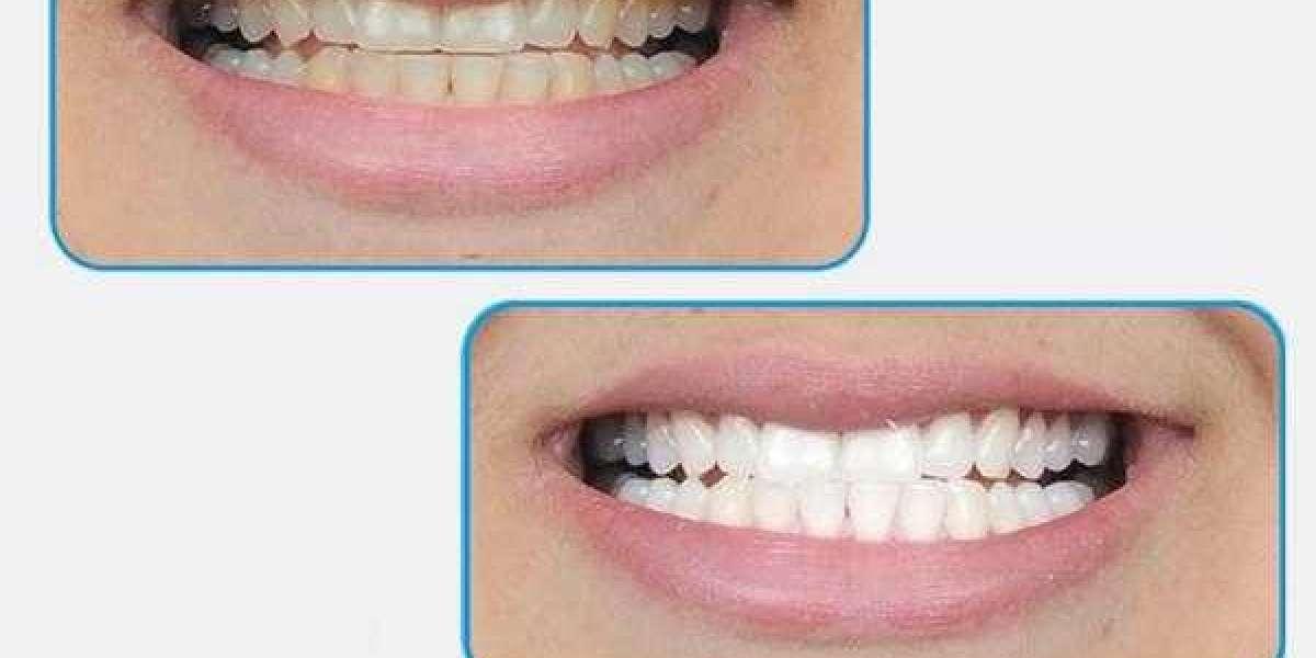 Teeth Whitening Products 64 Windows Cracked .rar